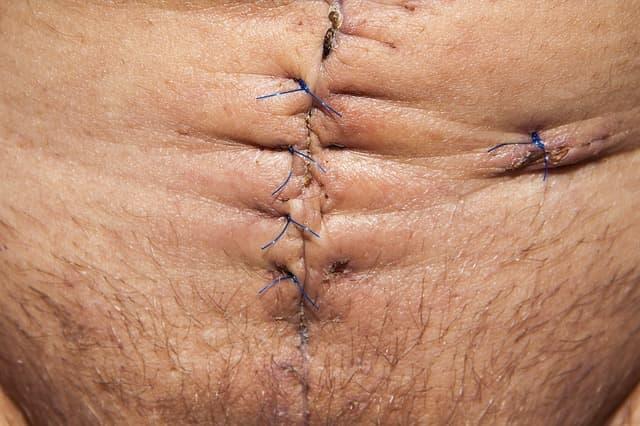 Abdominoplastia - Cirurgia Plástica do Abdômen e Barriga