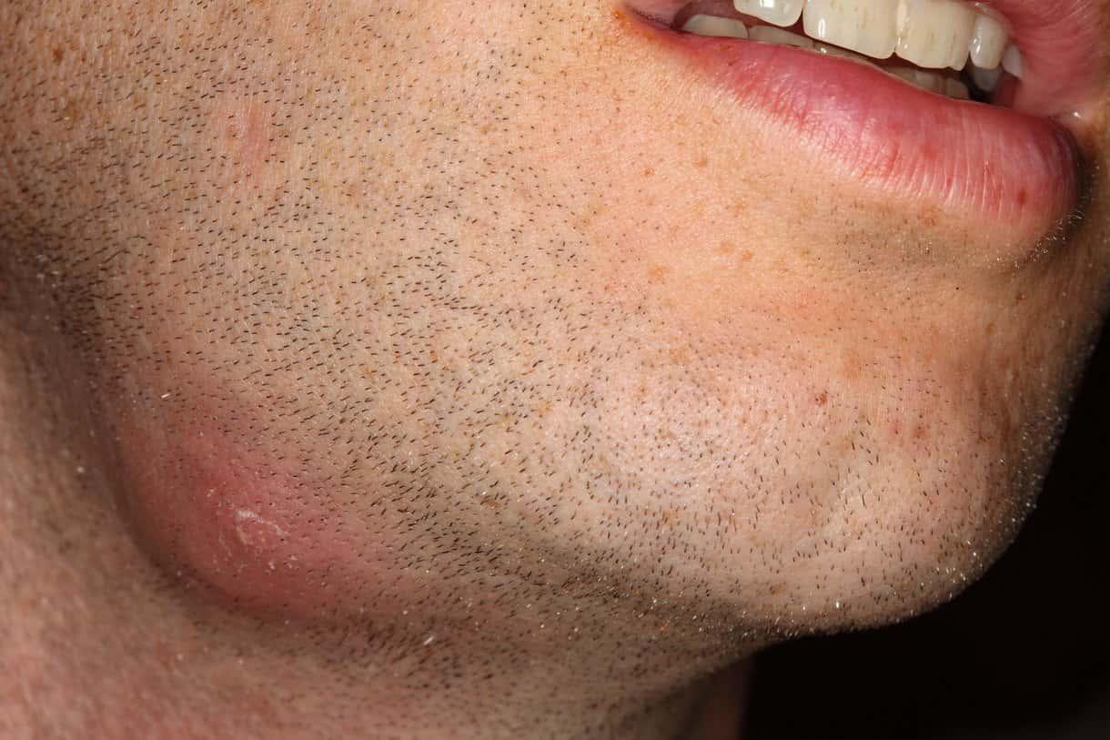 Um abscesso de pele geralmente aparece como um nódulo inchado e cheio de pus sob a superfície da pele.