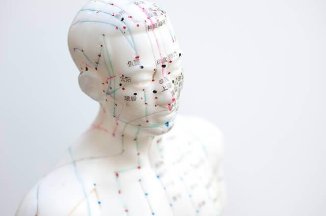Acupuntura Pode Ajudar A Aliviar A Dor De Fibromialgia