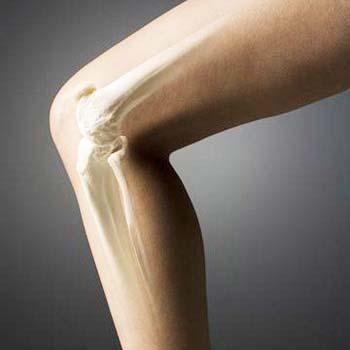 Artrite (Reumatóide e Osteoartrite) - Causa, Sintomas, Tratamento