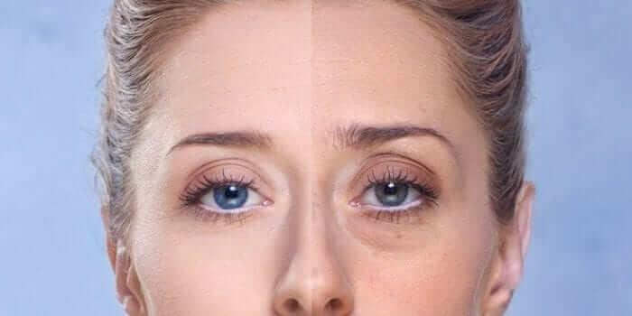 O que são Bolsas abaixo dos Olhos?