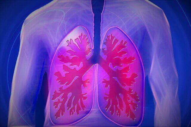 Bronquite | Sintomas e Tratamento