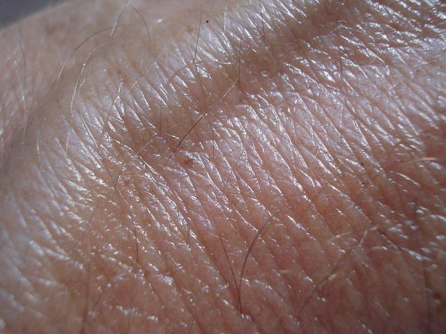 Câncer de pele