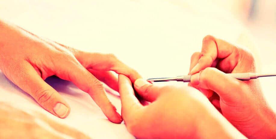 Carne Esponjosa provocada pelos alicates das manicures