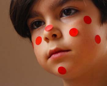 Catapora (Varicela) - Causas, Sinais, Sintomas e Tratamentos
