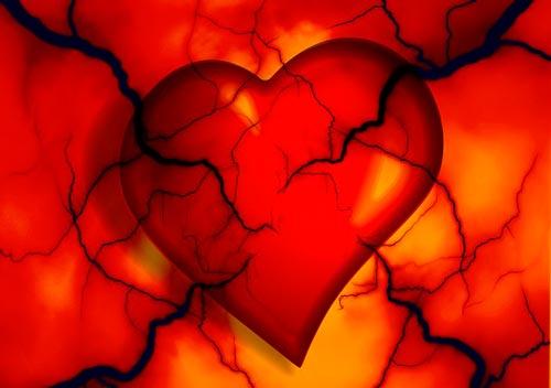 Cateterismo   O que é cateterismo cardíaco?