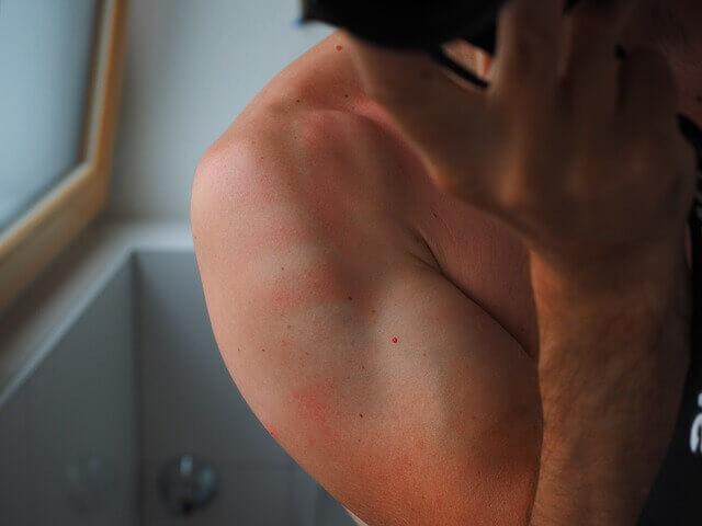 Quais são as causas da dor na coxa e dor nas costas?