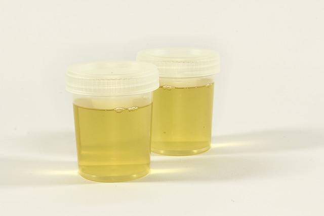 Causas da urina com cheiro forte | Urina com odor forte