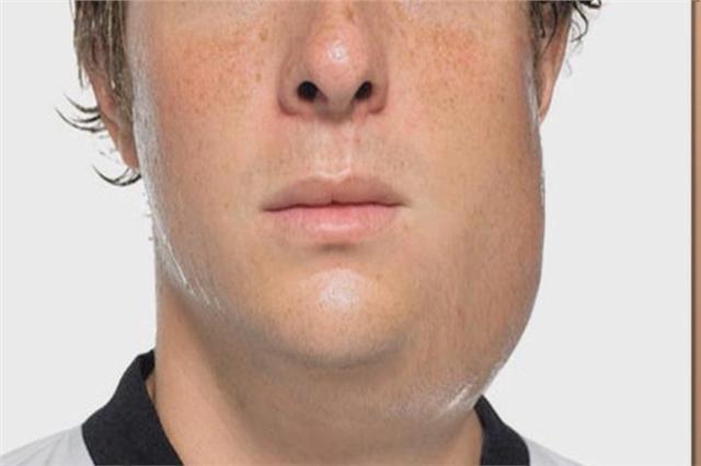 Caxumba afeta principalmente as glândulas salivares
