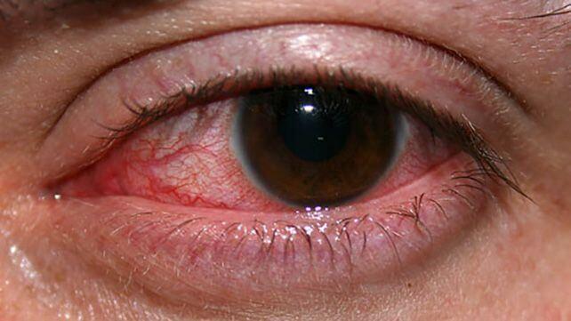 Ceratite é uma inflamação na córnea.