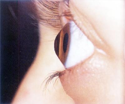 Ceratocone - Sinais, Sintomas e Consultar um Oftalmologista