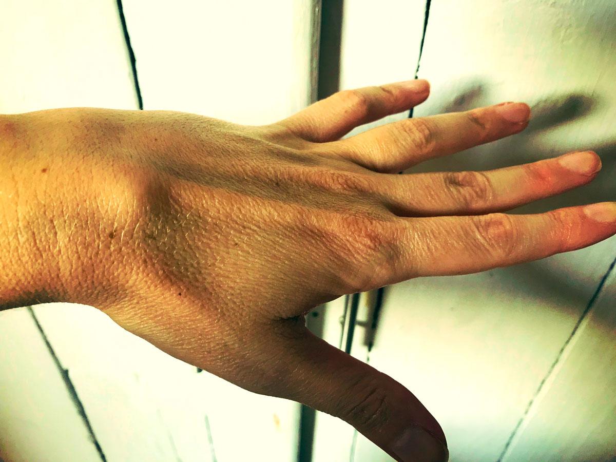 Cisto no pulso | Protuberância na parte traseira da mão