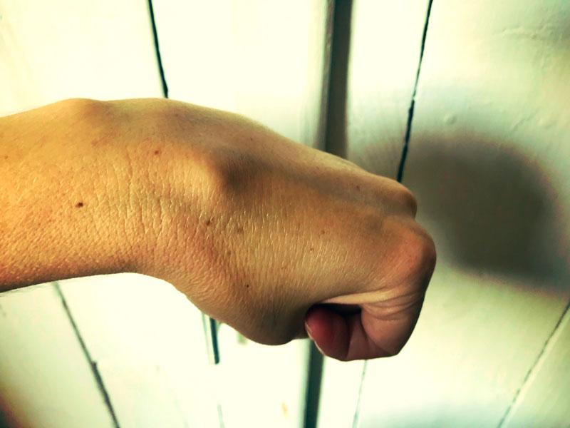 cisto no pulso
