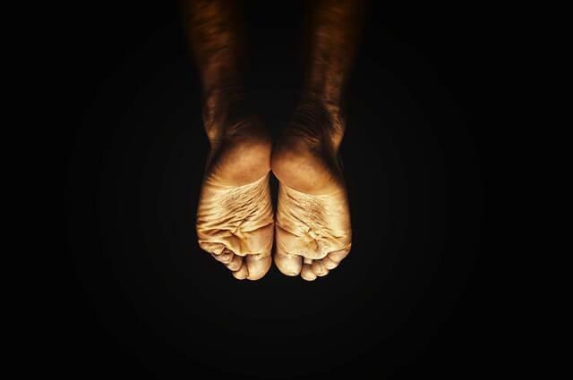 Coceira (comichão) nos pés durante o exercício