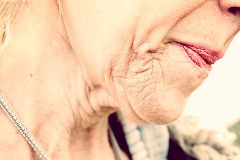 Como é que acontece o envelhecimento no corpo?