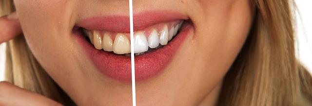 Clareamento Dental | Como faz para clarear os dentes?