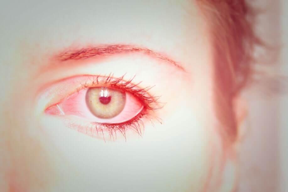Conjuntivite Alérgica - Aliviar os Sintomas e Prevenção