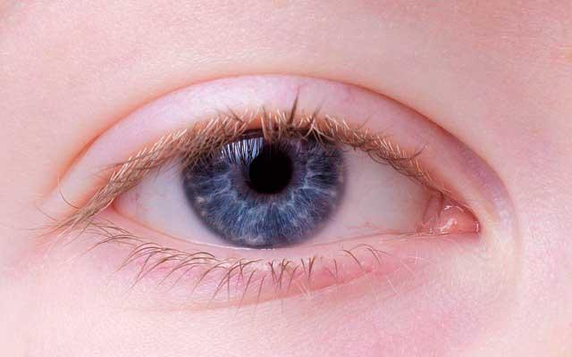 Depósitos de colesterol nos olhos | Sintomas e Tratamento