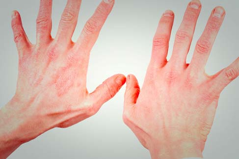 Dermatite | Causa pode ser de Alergia Alimentar