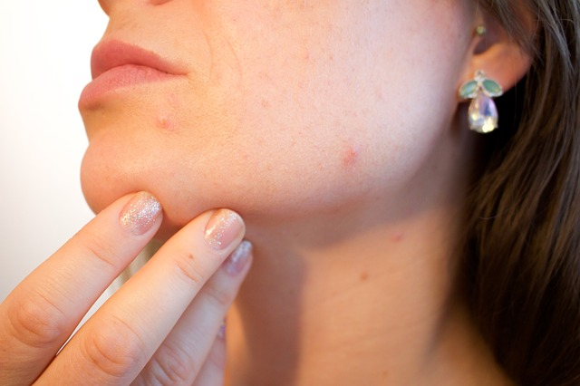 Dermatite da progesterona | Reações alérgicas aos hormônios menstruais