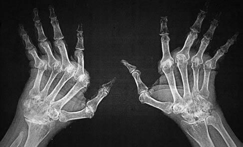 Diferenças entre Artrite Reumatoide e Osteoartrite
