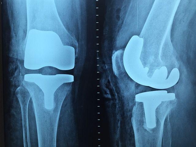 Lesões são as causas mais comuns de problemas e dores no joelho.