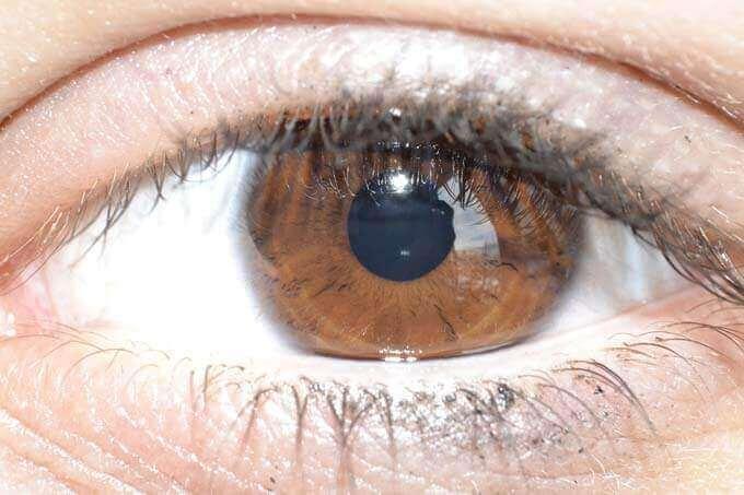 Dor No Olho - Sensação De Algo No Meu Olho