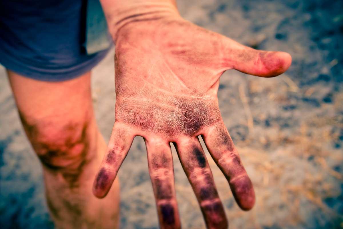 Dormência nas Mãos, principais causas da mão ficar dormente