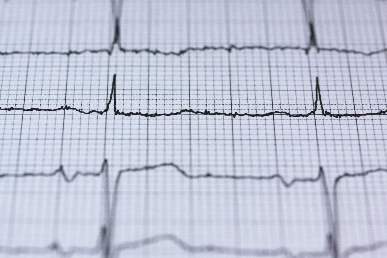 Efeitos colaterais de um pulso rápido