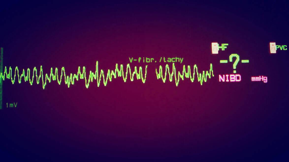 Fibrilação Ventricular | Problema do ritmo cardíaco