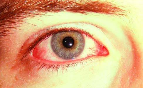 Hemorragia Subconjuntival - Mancha Vermelha no Olho