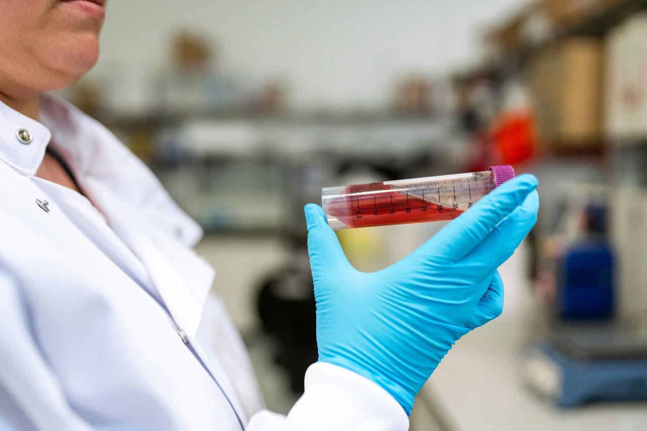 Infecção | A Importância do Seu Sistema Linfático