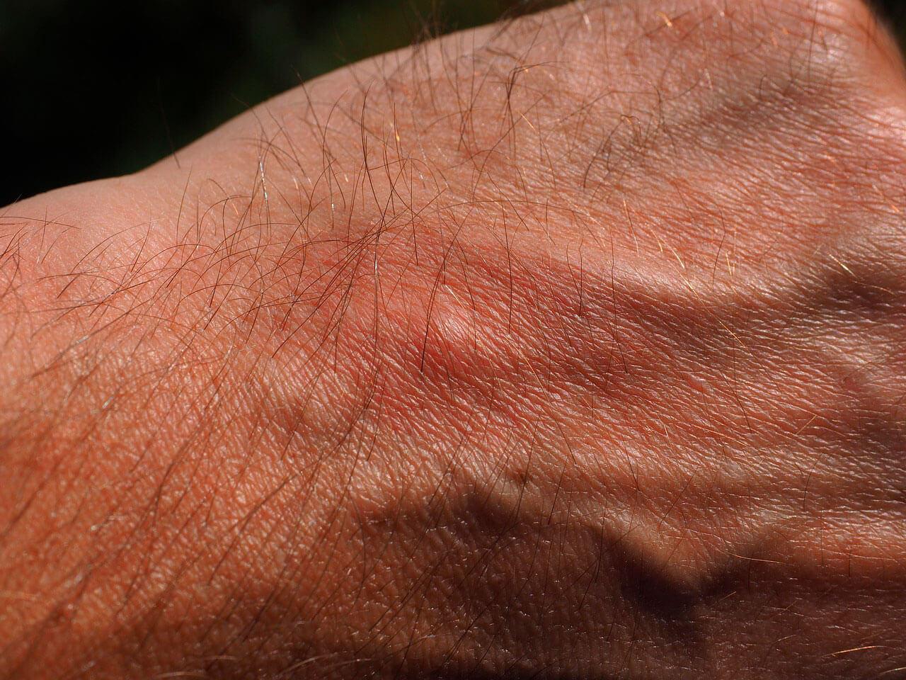 Infecções bacterianas comuns da pele | Comuns e como tratar