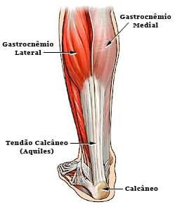 Lesão Gastrocnêmio Tendinite pode ser o motivo de sentir dor atrás do joelho