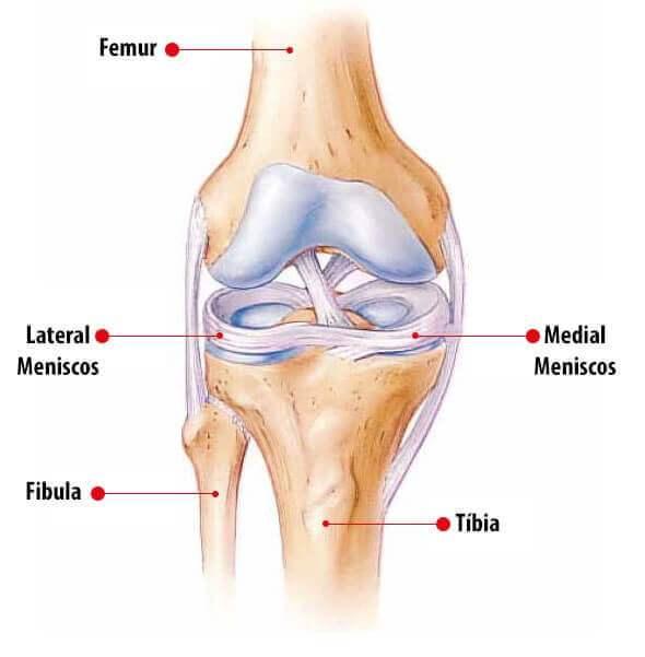 Lesão no Menisco pode causar dor na parte de trás do joelho