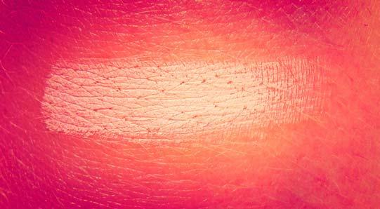 Marcas de Nascença | Manchas Coloridas e Sinais na Pele