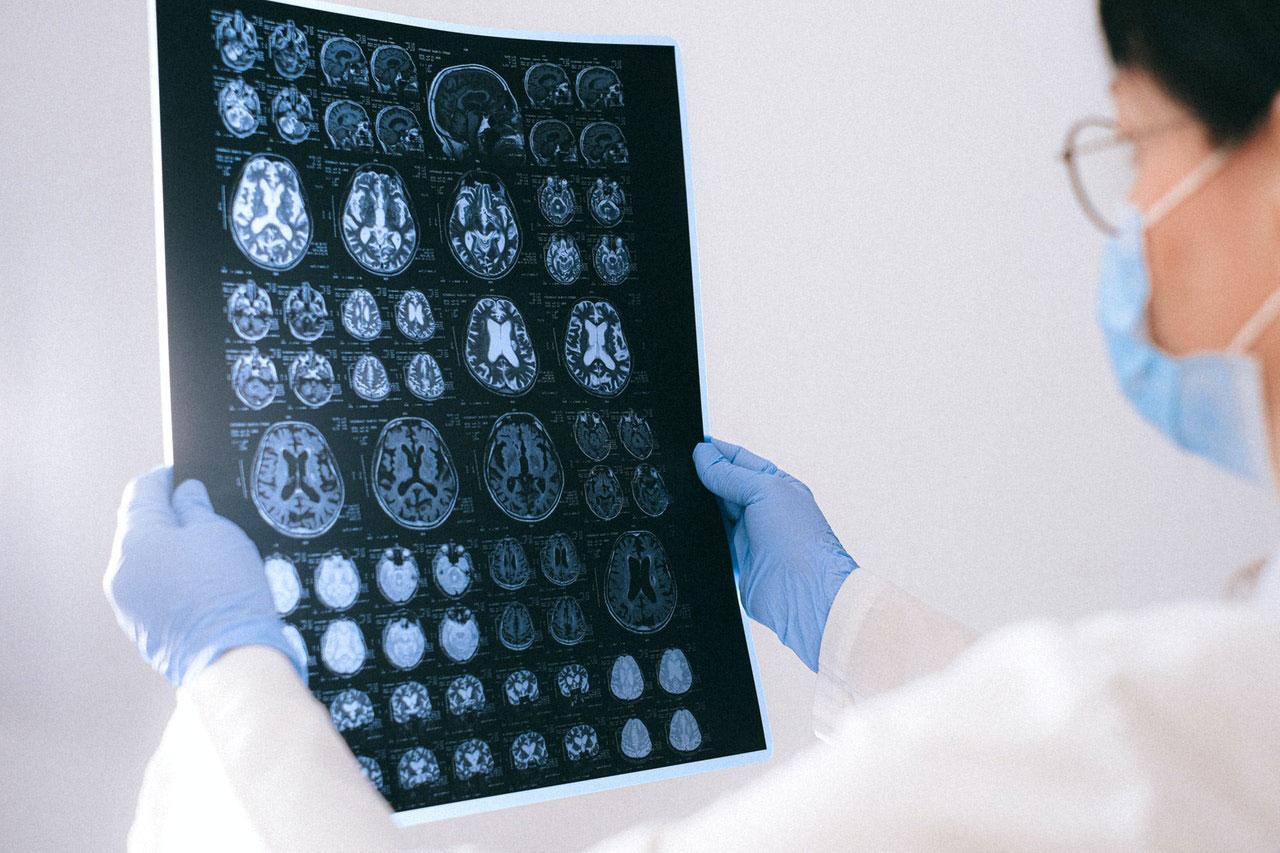 O que causa depósitos de cálcio no cérebro?