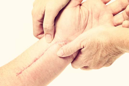 O que é Dor Miofascial Crônica?