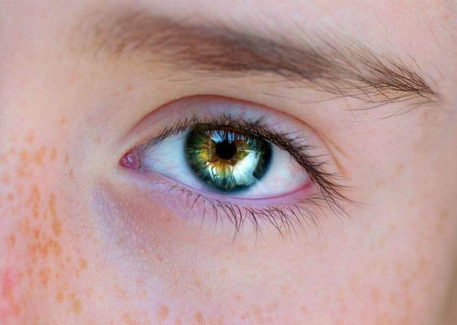 O que é retinopatia serosa central?