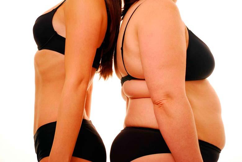 Obesidade - Calorias, Excesso de Gordura, Falta de Exercício