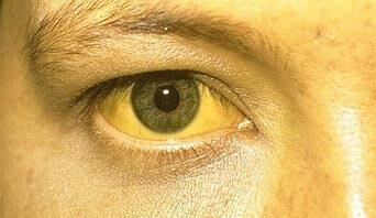 Olhos Amarelos por causa da Icterícia