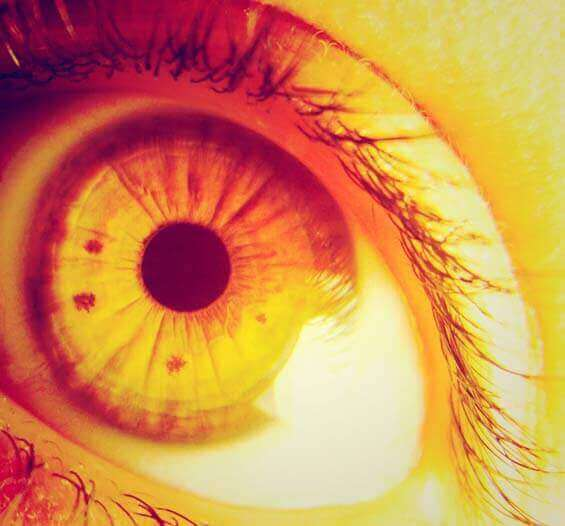 Olhos Amarelos - Quais as Causas dos Olhos Amarelados (Icterícia)?