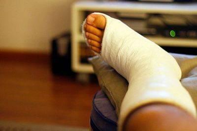 Perna quebrada - localização e gravidade da lesão