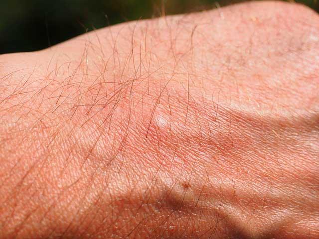 Pústulas na pele | Sintomas, Causas e Tratamento