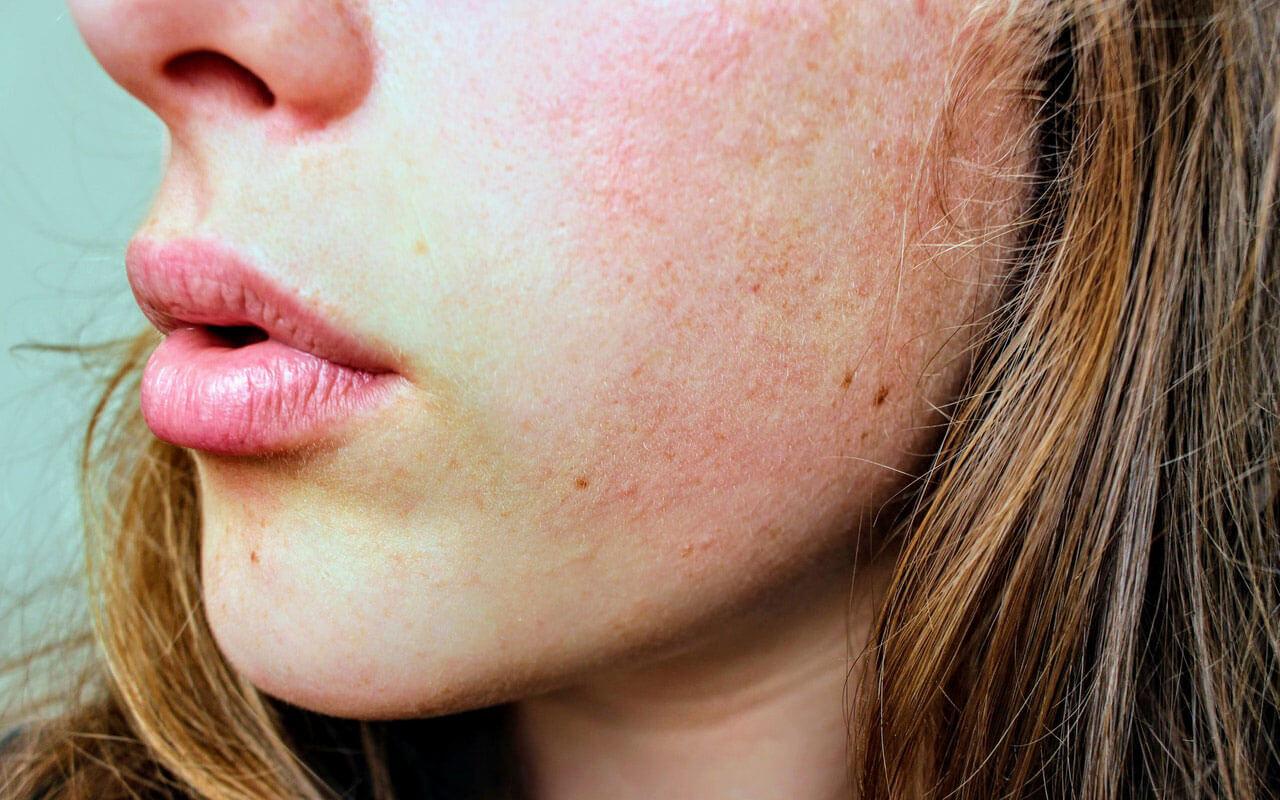 Quando consultar um dermatologista para a sua acne