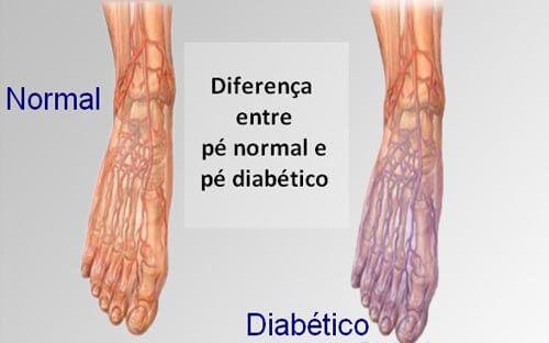 Queimação nas Pernas - Neuropatia Periférica (Diabetes)