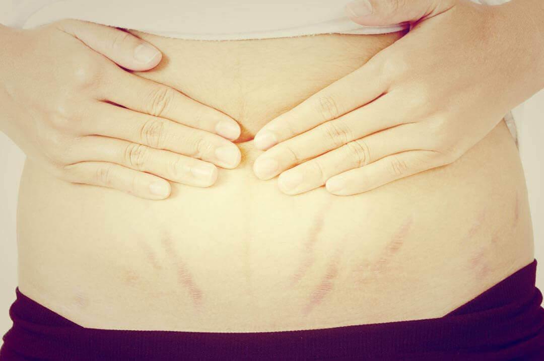 Sinais e sintomas de uma pedra nos rins com diarreia