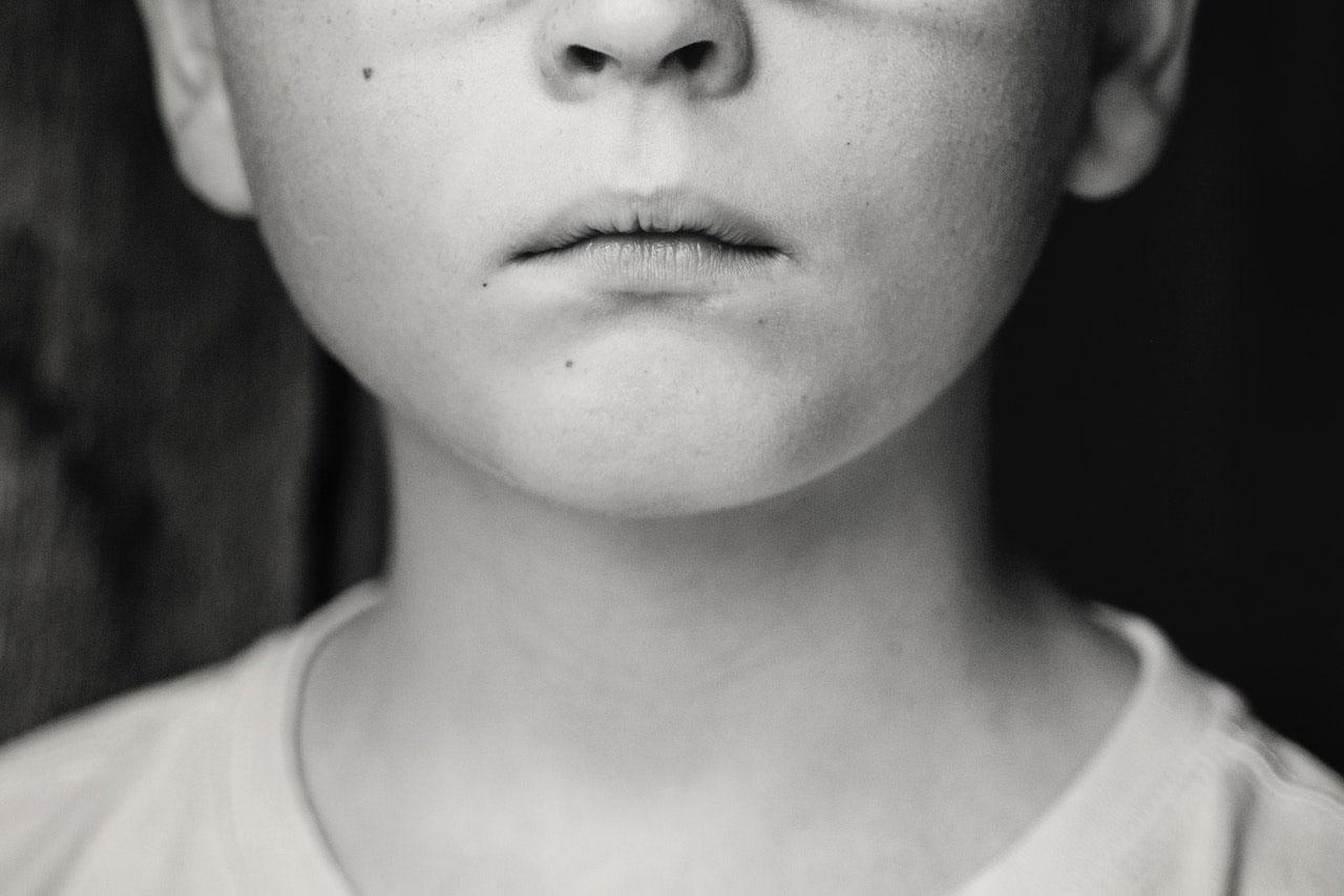 Síndrome de Coffin-Lowry | O que é, Causas, Sintomas e Tratar