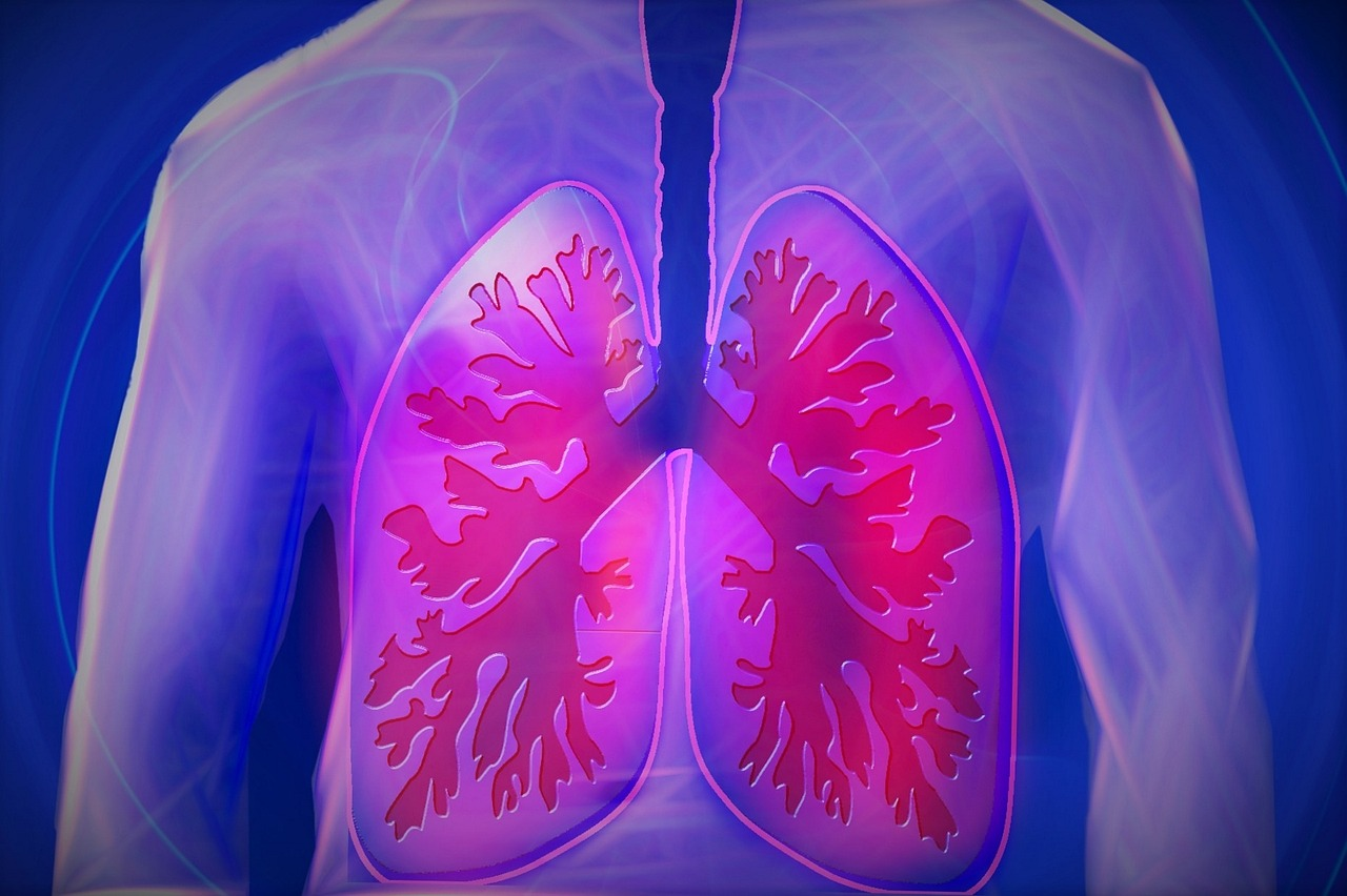 Síndrome do desconforto respiratório agudo | Causas e Sintomas
