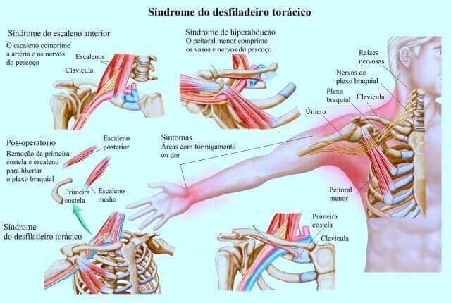 Síndrome do desfiladeiro torácico pode causar a dor do braço direito